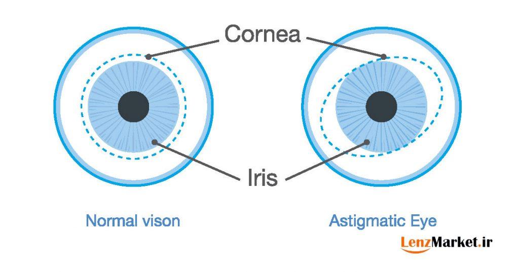 لنز توریک چیست