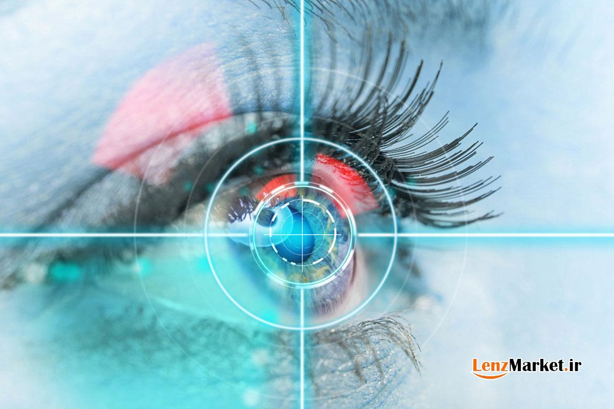 لنز توریک چیست لنز آستیگمات