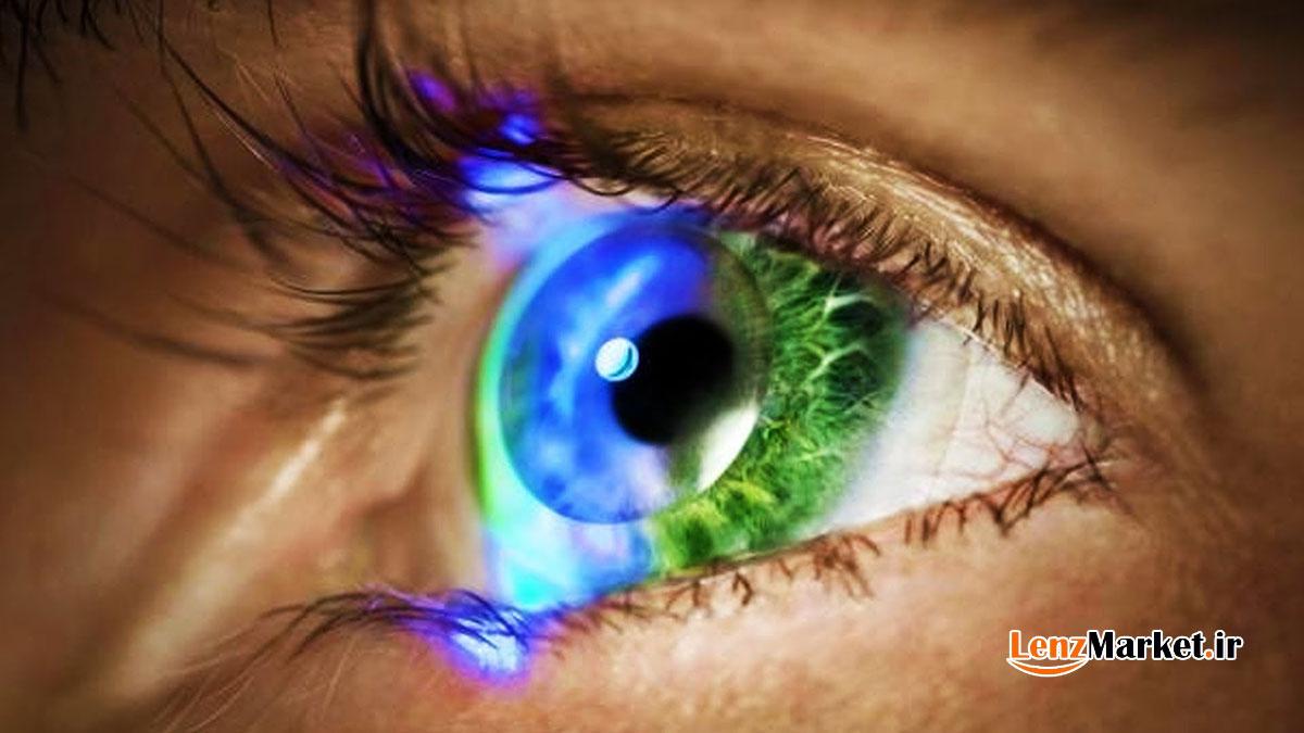 لنز رنگی برای چشم
