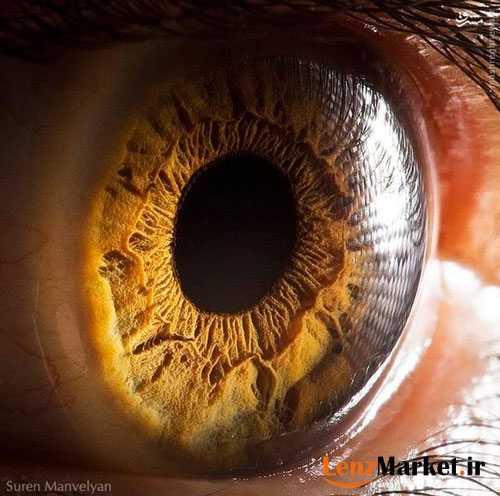 عمل لنز داخل چشم چیست 3