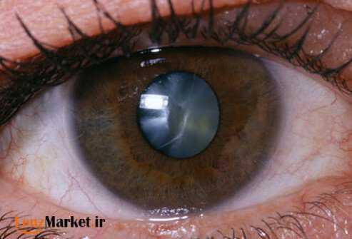 انواع لنز داخل چشم 6