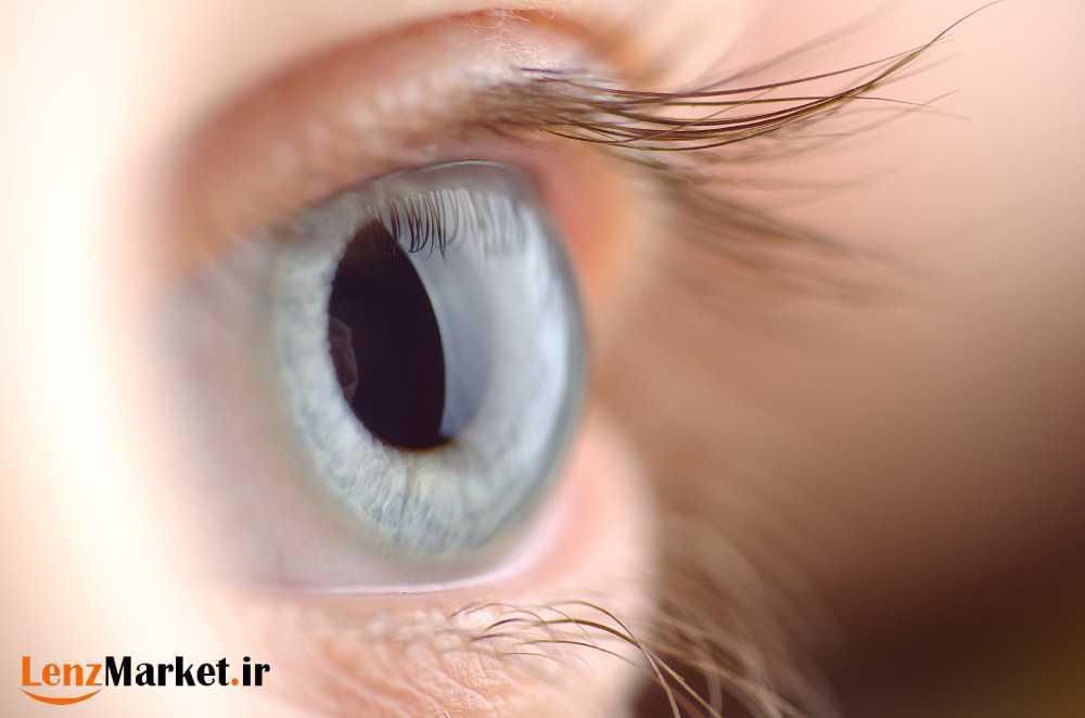 انواع لنز داخل چشم 3