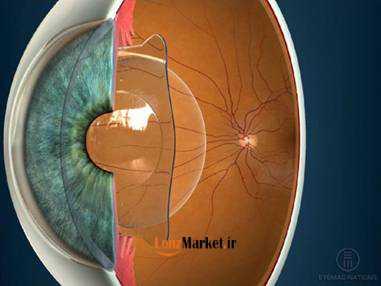 انواع لنز داخل چشم 54
