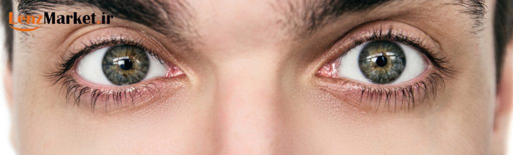 لنز آستیگمات 12