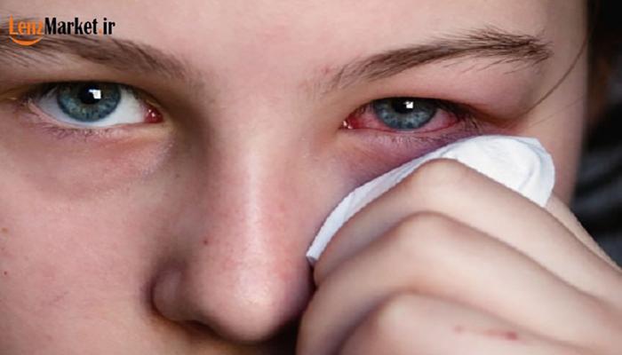 عوارض استفاده از لنز