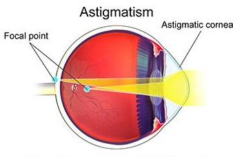 تعیین نمره چشم آستیگمات 1