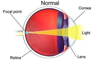تعیین نمره چشم 2