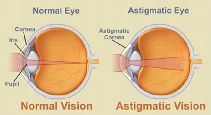 نمره چشم آستیگمات در کودکان 2