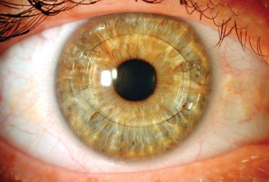 لنزهای داخل چشمی ICL