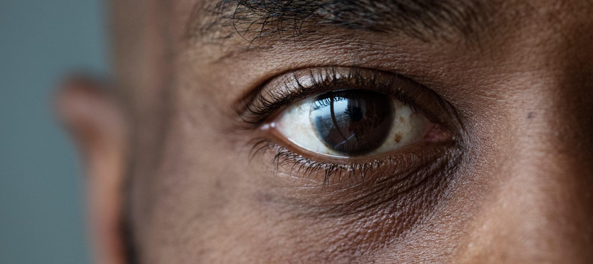 اختلال مگس پران چشمی چیست؟
