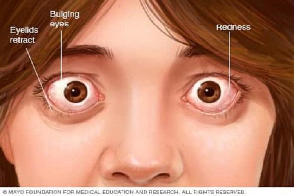 بیماری گریوز چشمی یا بیرون زدگی چشم چیست؟