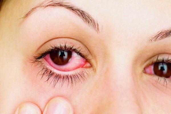 حساسیت چشم را هنگام استفاده از لنز