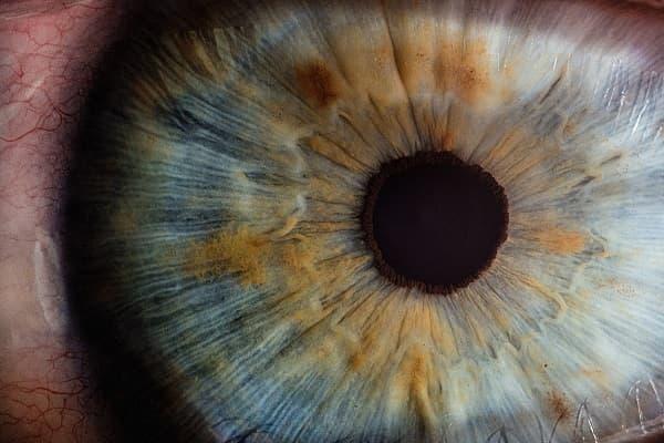 علائم آستیگماتیسم چشم